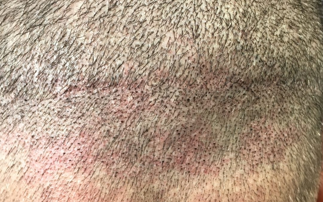 Hair Transplant Scar Camouflage
