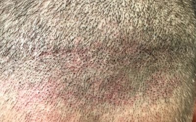 Get Rid of Your Hair Transplant Scar – Understanding the Benefits of Scalp Micropigmentation
