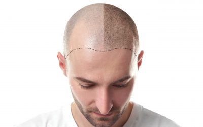 Tips For Before & After Scalp Micro-Pigmentation Care