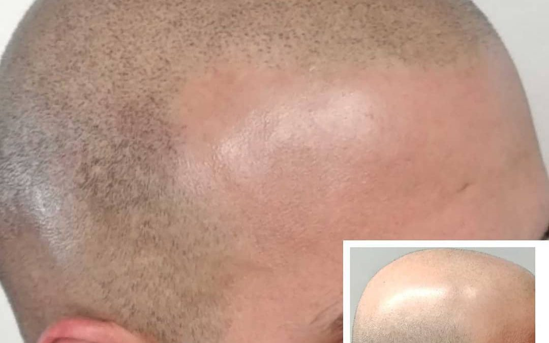 Being bald is an option!Thanks to S… Read More