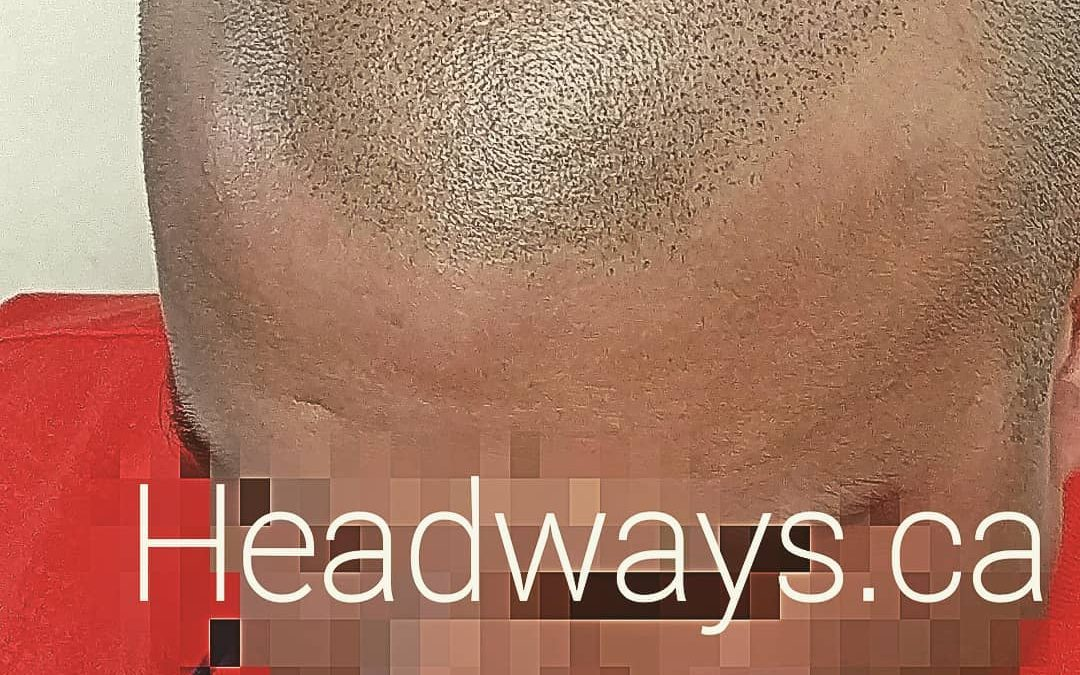 No hair?  Who would know? Scalp Mic… Read More