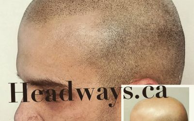 The BEST answer to hair loss is NOT… Read More